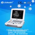 precio de la máquina de ultrasonido y máquina de ultrasonido para el embarazo