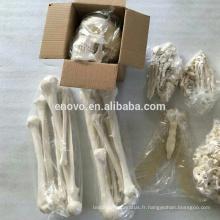 SKELETON10 (12371) Squelette non assemblé de 170cm de science médicale, squelette artificiel humain désarticulé