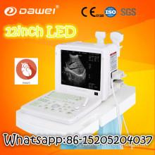 ultrasound printer paper & cheap full digital ultrasound scanner
