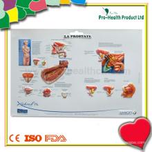 Prostata 3D Medizinische Wandkarte