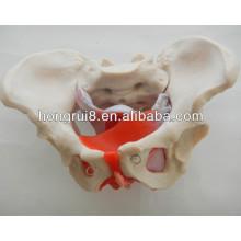 ISO Modelo da pelve feminina com músculos pélvicos e órgãos pélvicos, modelo genital feminino