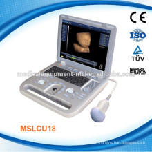 Le scanner d'échographie portable 3D et 4D MSLCU18-M, vous l'aimerez !!