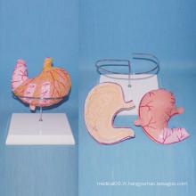 Anatomie de l'estomac normale anatomique Modèle d'enseignement de l'ulcère gastrique (R100204)
