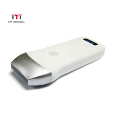 IOS/Android /Windows mini wifi 80 elements B/W version wireless ultrasound transducer linear  probe