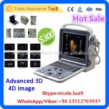 MSLCU28I vascular doppler ultrasound machine & 3d 4d color doppler ultrasound