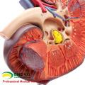 KIDNEY01(12430) Enlarge Medical Science Human Organs Anatomy Adrenal Gland Model