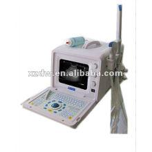 Máquina de ultra-som portátil VENDA QUENTE para a índia (DW3101A)