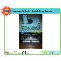 Unidade de raio-X portátil portátil de baixa dose