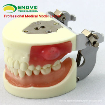 Oral Surgery Area Training Model Incision Pus Removal Practice Model 12605