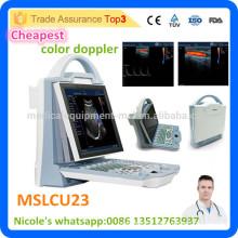 2016 Le scanner à ultrasons Doppler couleur MSLCU23i le plus économique est livré avec une sonde convexe et une sonde linéaire
