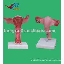 O útero ampliar Modelo modelo de útero