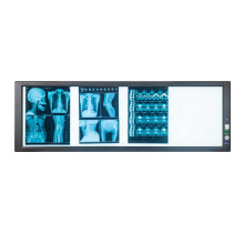 Chinese factory Quadruple LED X-ray film viwer box thin LED x-ray film scanner in Hospital
