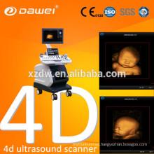 echo color doppler 4D function & vascular pregnancy ultrasound scanner & ultrasound scanner latest version USG with CE ISO