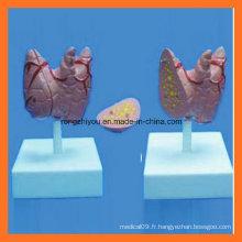 Modèle médical de taille naturelle Thyroidea Model