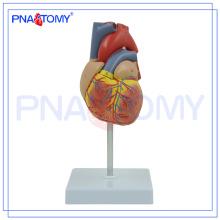 Modelo humano plástico do coração da aterosclerose PNT-0400 para o ensino médico