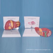 Modèle anatomique humain d'anatomie médicale du foie pour l'enseignement (R100106)