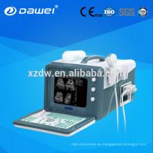 Sonda portátil de ultrasonido médica portátil ¡Bienvenido a su consulta de sonda médica portátil de ultrasonido!