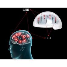 PBM 810nm Light Therapy Brain Tumor Rehabilitation Helmet