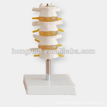 Lumber Set Spine