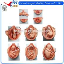 Modèles de développement de nouveaux fœtus pendant la grossesse
