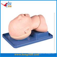 Intubation endotrachéale infantile de luxe avancée
