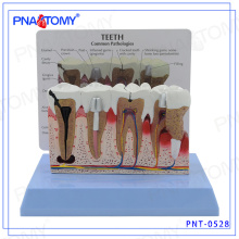 PNT-0528 High Graded Periodontal Disease Dental Teeth Model