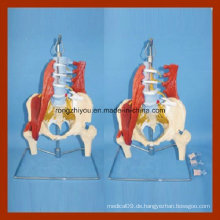 Pathologische Modell Disc Natürliche Größe Lendenwirbelsäule mit dem Becken und Half Bein Modell
