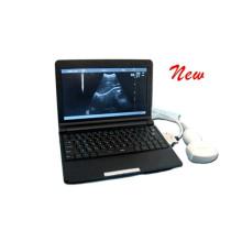 2015 PT3000d1 nouveau produit ordinateur portable numérique complet Echographe portable