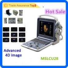 MSLCU28i Good resolution!! Color doppler ultrasound/4d color doppler ultrasound machine/4d ultrasound machine