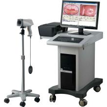 Matériel médical produits gynécologiques Colposcope Digital Imaging System