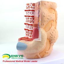 HEART20 (12495) Modelo anatômico da educação da ciência médica das fibras do músculo esquelético