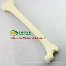 GROSSHANDELSIMULATIONS-KNOCHEN 12318 künstliches Femur Skeleton Swabone Implantat-Praxis-Modell