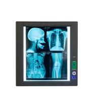 Single panel x-ray film scanner led negatoscope
