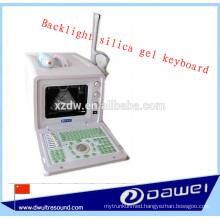 portable gynecological ultrasound scanner