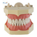 Typ Study Dental Model