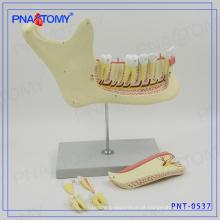 Modelo de osso PNT-0537gc direto dentes de fábrica e modelo de mandíbula