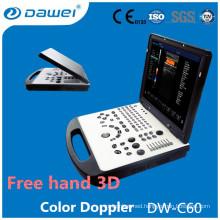 DW-C60 2d echo machine price, laptop color doppler ultrasound price