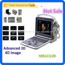 2016 Latest brand MSLCU28I 3d/4d laptop/portable color doppler ultrasound/color doppler ultrasound equipment price