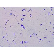 Factory Price 100 Billion CFU/g Lactobacillus Crispatus