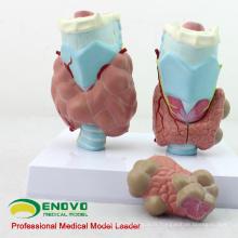VISCERA13 (12550) Modèle médical anatomique de maladies thyroïdiennes de Science médicale avec 4 parts
