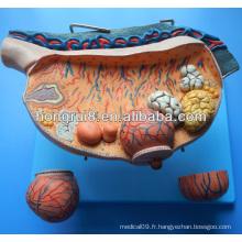 Modèle d'ovaire anto-anatomique anatomique ISO, modèle oophoron