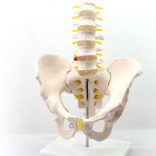PELVIS05 (12342) Médica Ciência Médico Modelo Médico em Tamanho Real Pelvis com 5 pcs Anatomia de Vértebras Lombares