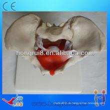 ISO Weibliches Beckenmodell mit Beckenmuskeln und Beckenorganen, Anatomie-Modell des Beckens