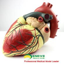 HEART09 (12485) Modèle anatomique de coeur humain surdimensionné, en 3 parties, modèles d'anatomie> Modèles de coeur