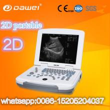 Clinic bladder scanner prices & portable ultrasound scan machine