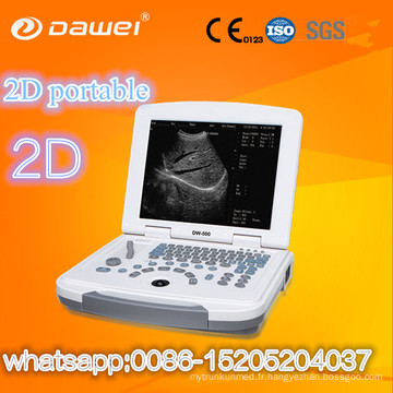 Prix de scanner de vessie de clinique et machine portative de balayage d'ultrason