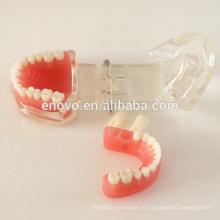 Китай Медицинские Анатомические Модели Съемные Мягкие Десны Стандартный Зубов Челюсти Модель 13017