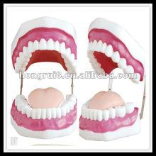 Modèle de soins dentaires ISO (28 dents), modèle de dents HR-403