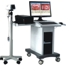 POY2200 Colposcope Digital Imaging System (Digital)