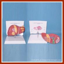 Patologias comuns humanas do modelo do fígado com placa de descrição